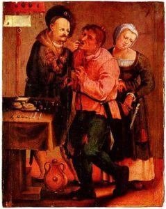 Средневековый стоматолог удаляет зуб. (Общественное достояние, 1616 - 1617)